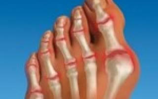 Деформация пальцев на ногах причины и лечение