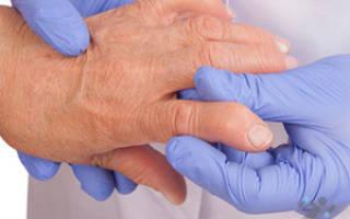Ревматоидный артрит профилактика и лечение