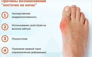 Бурсит сустава большого пальца ноги