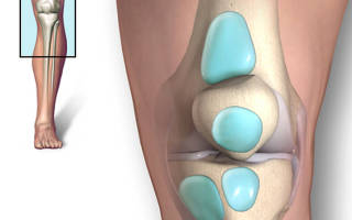 Болит колено под чашечкой при ходьбе