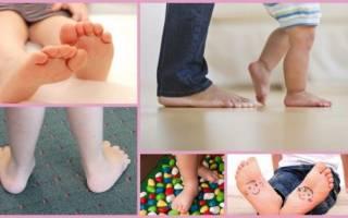 Как выявить плоскостопие у ребенка