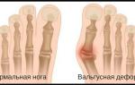 Шишки на ногах причины возникновения