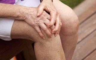 Таблетки при артрите коленного сустава
