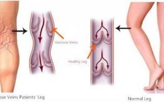 Вздутые вены на ногах у женщин