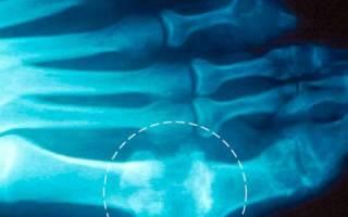 Симптом пробойника при подагре рентген