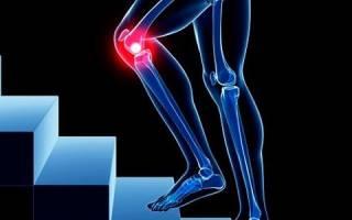 Резкая боль в колене при ходьбе