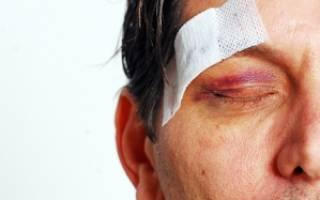 Рассеченная рана