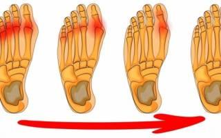 Чем можно вылечить шишки на ногах