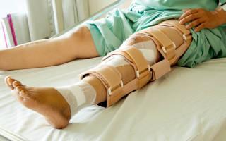 Симптомы перелома ноги у человека