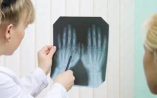 Аутоиммунный артрит симптомы