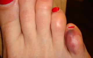 Боль в мизинце правой ноги