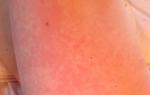 Сыпь на стопе в виде красных точек