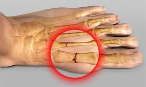 Лангета на стопу при переломе плюсневой кости