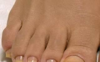 Почему пожелтели ногти на ногах