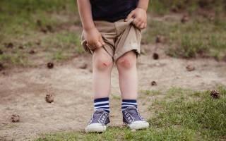 Разбитое колено фото