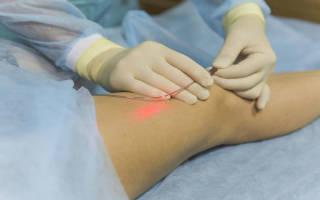 Как вылечить варикоз на ногах без операции