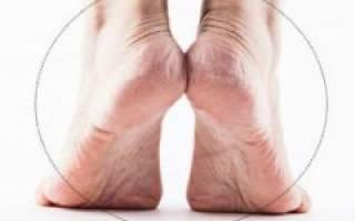 Болит нога в стопе снизу при ходьбе