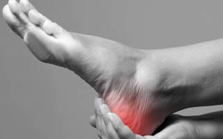 Симптомы при растяжении связок на ноге ступни