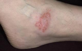 Грибковая экзема на ногах