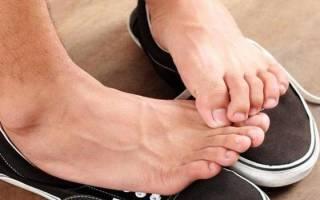 Преют пальцы на ногах что делать