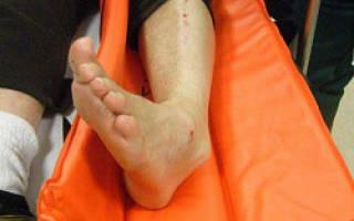 Признаки перелома ноги в щиколотке