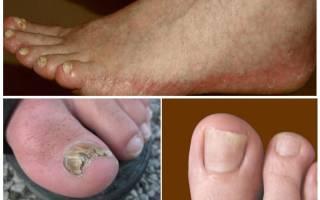 Виды грибков ногтей на ногах