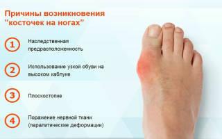 Народное средство от шишек на ногах