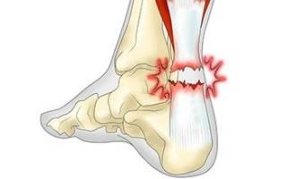 Разрыв сухожилия на ноге