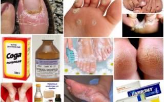 Грибок на ногах лечение в домашних условиях