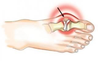 Деформация суставов пальцев ног лечение