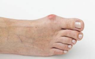 Костный нарост на пальце ноги