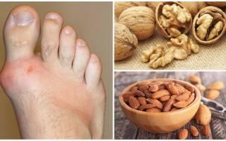 Можно ли есть грецкие орехи при подагре