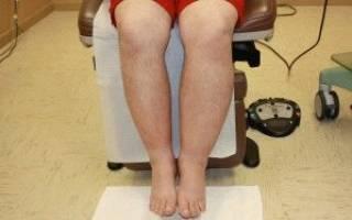 Лимфатический отек ног лечение