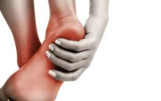 Боль в области пятки с внутренней стороны