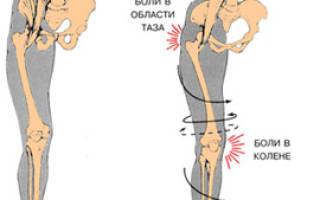 Какой врач лечит плоскостопие у взрослых