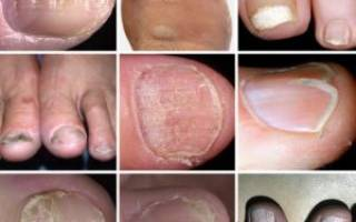Поражение ногтей на ногах
