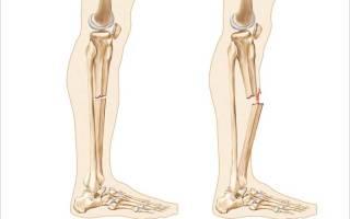 Первая помощь при закрытом переломе ноги