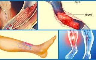 Что такое тромбообразование