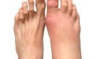 Болят мизинцы на ногах при ношении обуви