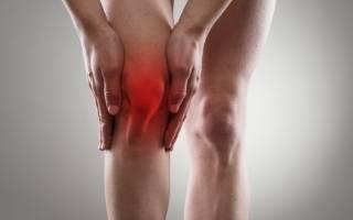 Болит колено к кому идти на прием