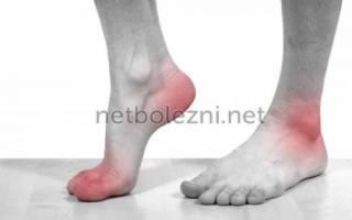 Мазь от боли в стопах ног
