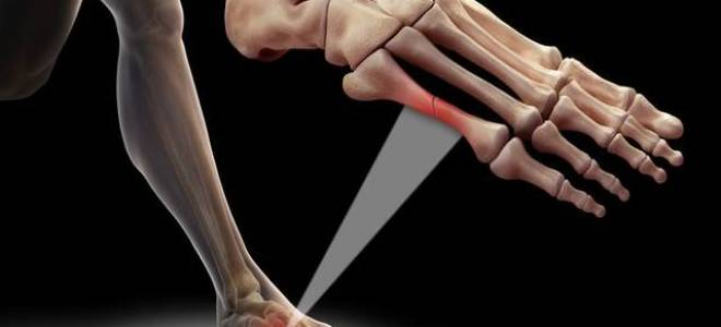 Сколько времени срастается перелом пальца на ноге