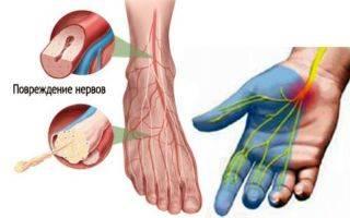 Мурашки в левой ноге причины