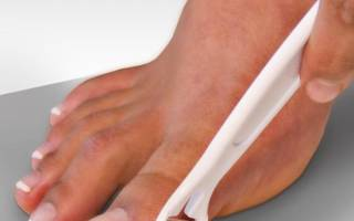 Как лечить натоптыши на пальцах ног