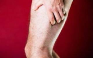 Болят ляшки ног причина у женщин