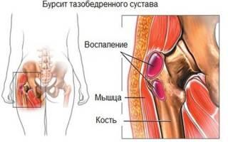 Воспаление суставной сумки тазобедренного сустава