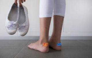 Мозоли на ступнях лечение в домашних условиях