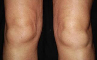 Отечность коленного сустава причины
