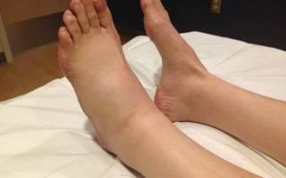 Почему пухнут ноги до колен