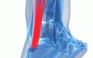 Сухожилие на ноге болит где пятка